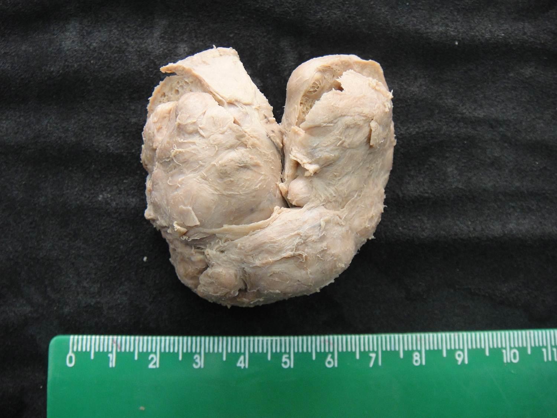 adaptação celular 18-hiperplasia nodular prostática