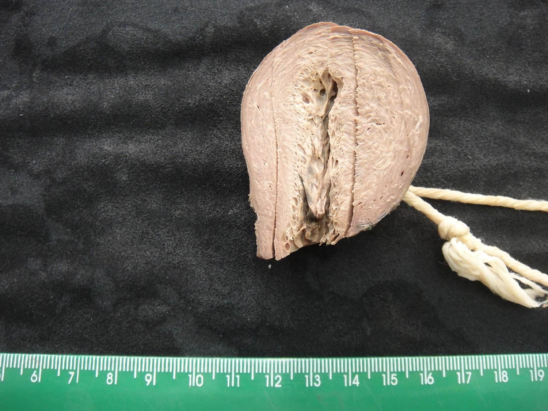 adaptação celular 37-hiperplasia patológica de endométrio