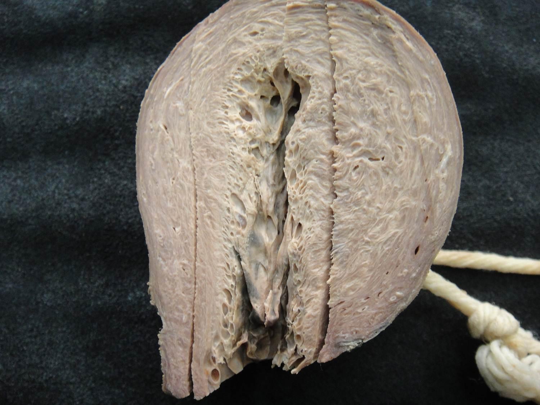 adaptação celular 38-hiperplasia patológica de endométrio