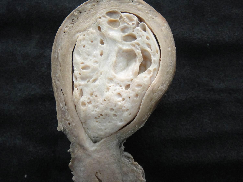 adaptação celular 41-hiperplasia polipóide de endométrio