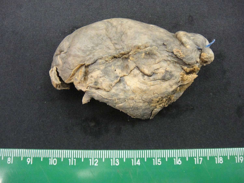 inflamação aguda 11-colecistite aguda
