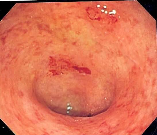 inflamação aguda 04-colite ulcerada