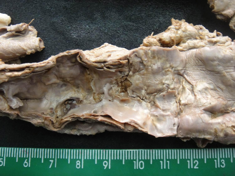lesão celular 05-aterosclerose