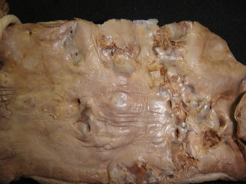 lesão celular 10-aterosclerose