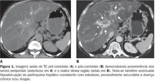 lesão celular 03-esteatose hepática