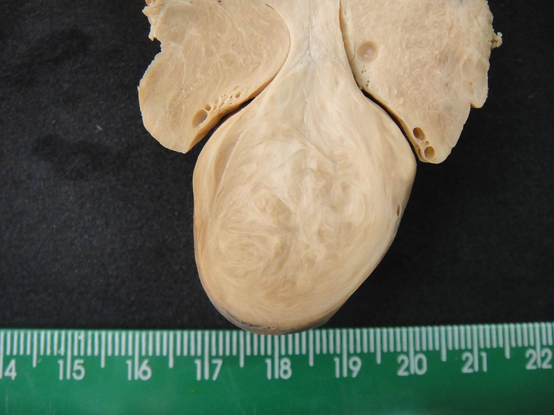 neoplasia benigna 12-leiomioma em parturição