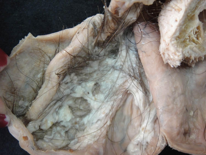 neoplasia benigna 16-teratoma cístico